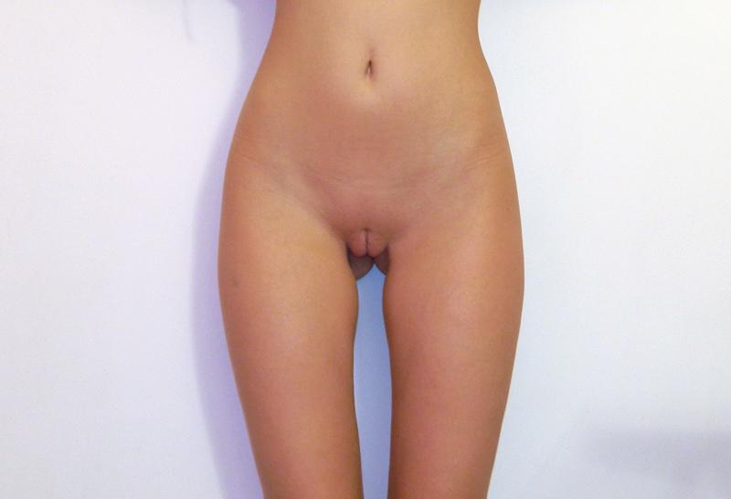 Rogelio recommends Fake tits porno